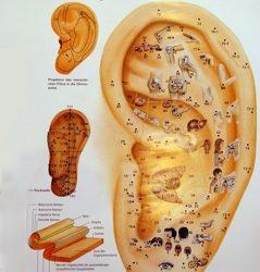 Minden, amit a fülakupunktúráról tudnod kell